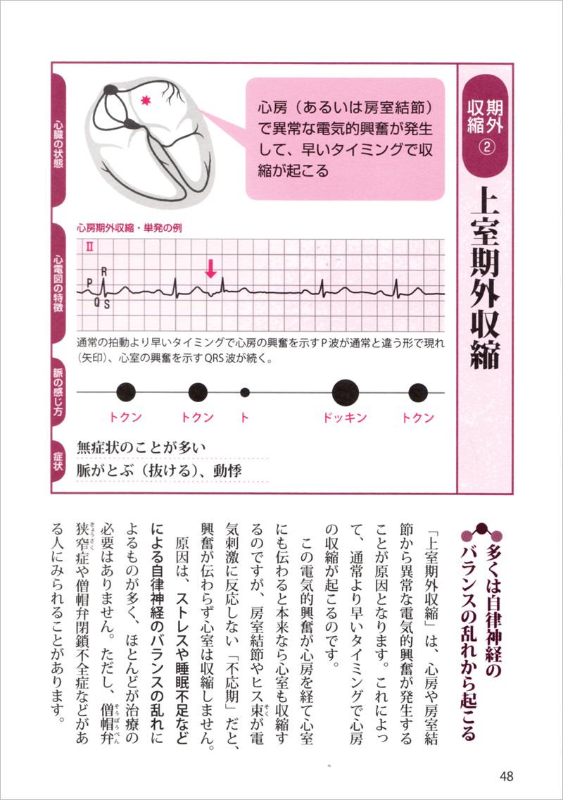不整脈のタイプ別に、詳しく解説